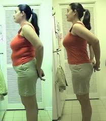 Hypnose pour la perte de poids - Dame de comparaison de perte de poids